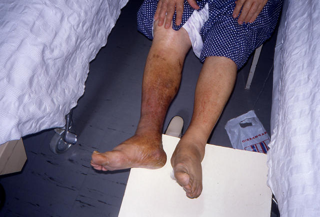 gravitational eczema