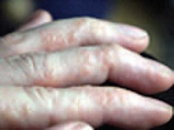 Pompholyx or Dishydrotic eczema
